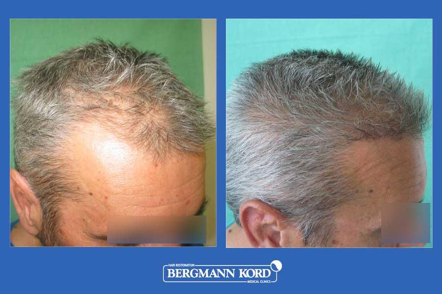 hair-transplantation-bergmann-kord-results-men-28776PG-before-after-004
