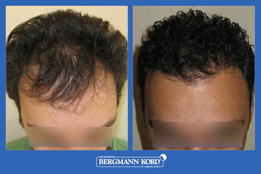 hair-transplantation-bergmann-kord-results-men-29508PG-before-after-001