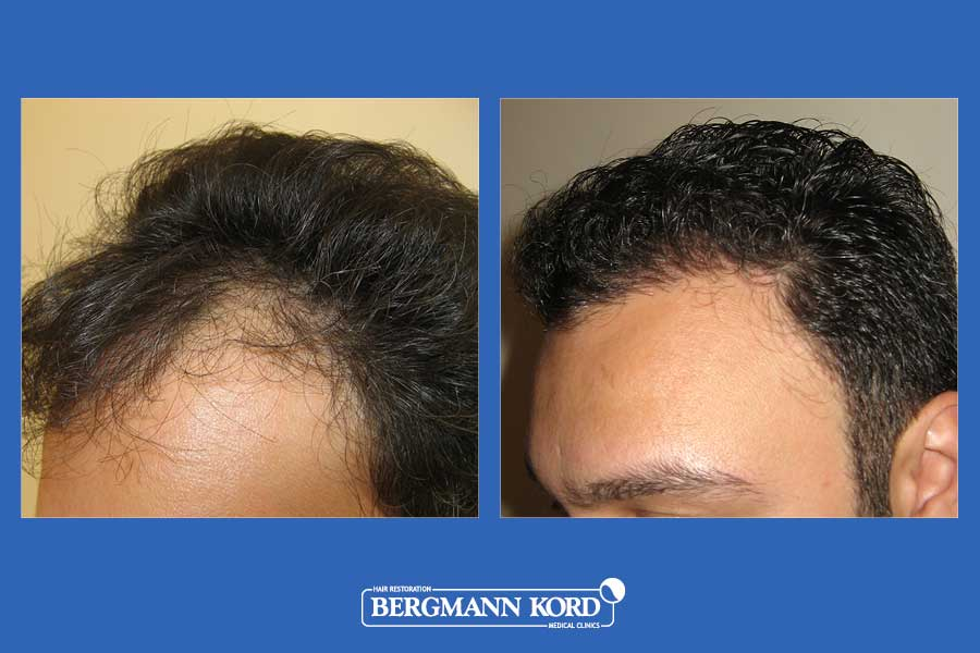 hair-transplantation-bergmann-kord-results-men-29508PG-before-after-002