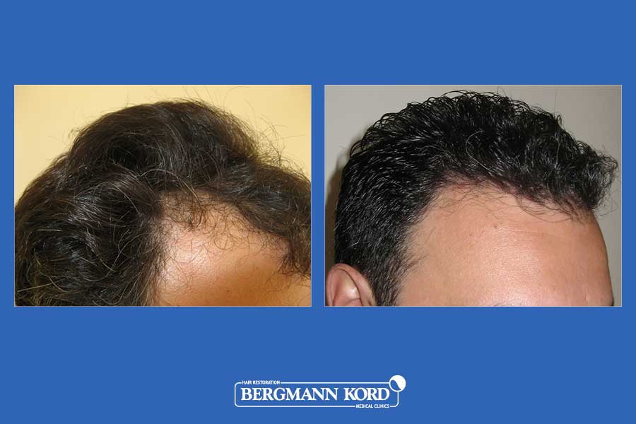 hair-transplantation-bergmann-kord-results-men-29508PG-before-after-003