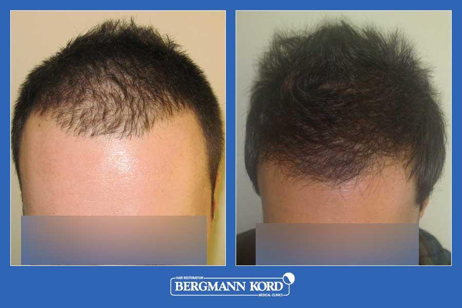 hair-transplantation-bergmann-kord-results-men-29871PG-before-after-001