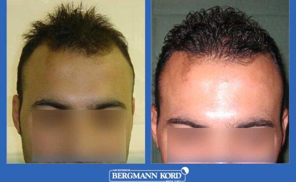 hair-transplantation-bergmann-kord-results-men-30098PG-before-after-001