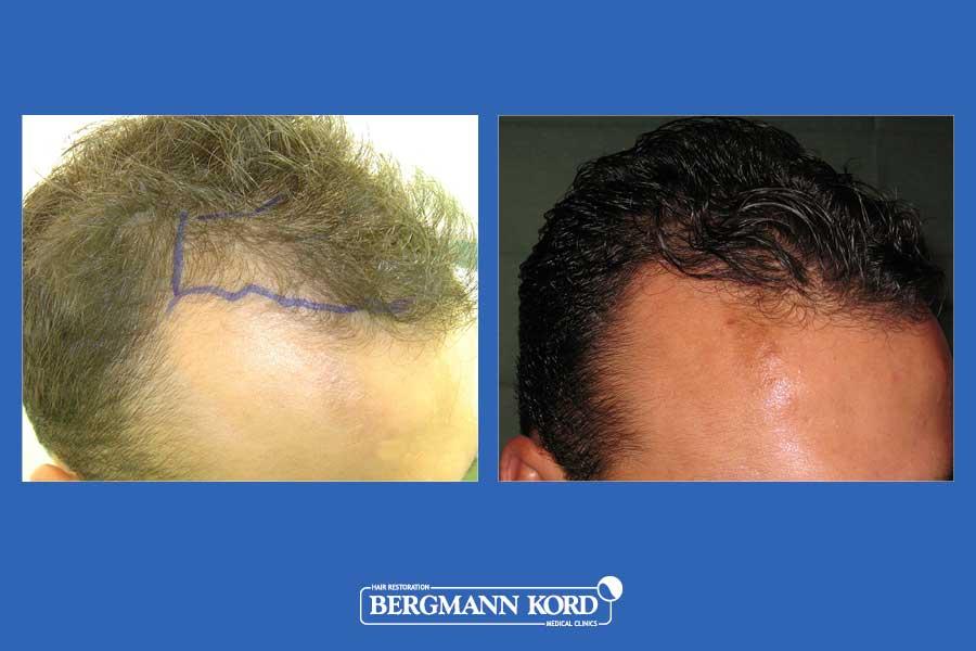 hair-transplantation-bergmann-kord-results-men-30098PG-before-after-003