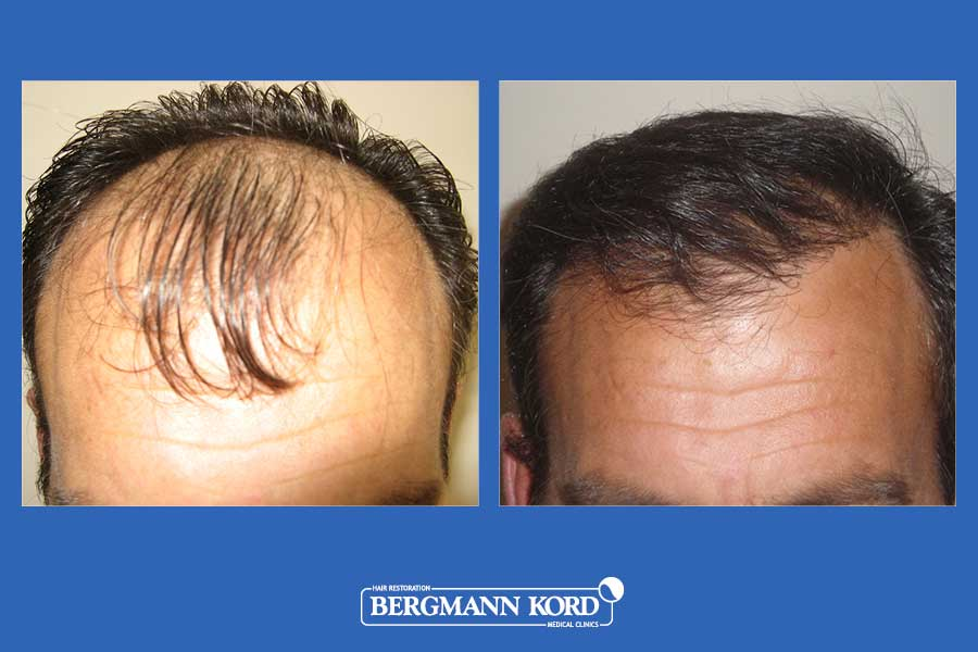 hair-transplantation-bergmann-kord-results-men-31092PG-before-after-001
