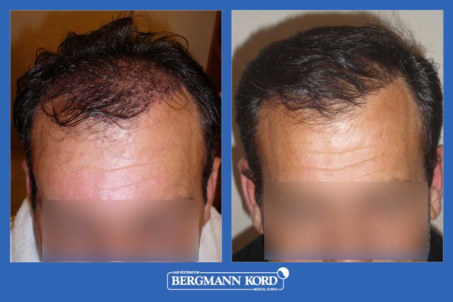 hair-transplantation-bergmann-kord-results-men-31092PG-before-after-002