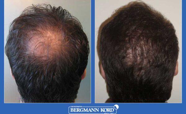 hair-transplantation-bergmann-kord-results-men-31103PG-before-after-001