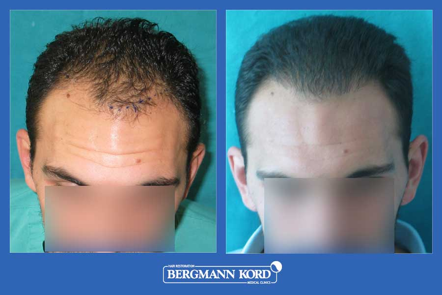 hair-transplantation-bergmann-kord-results-men-31667PG-before-after-001