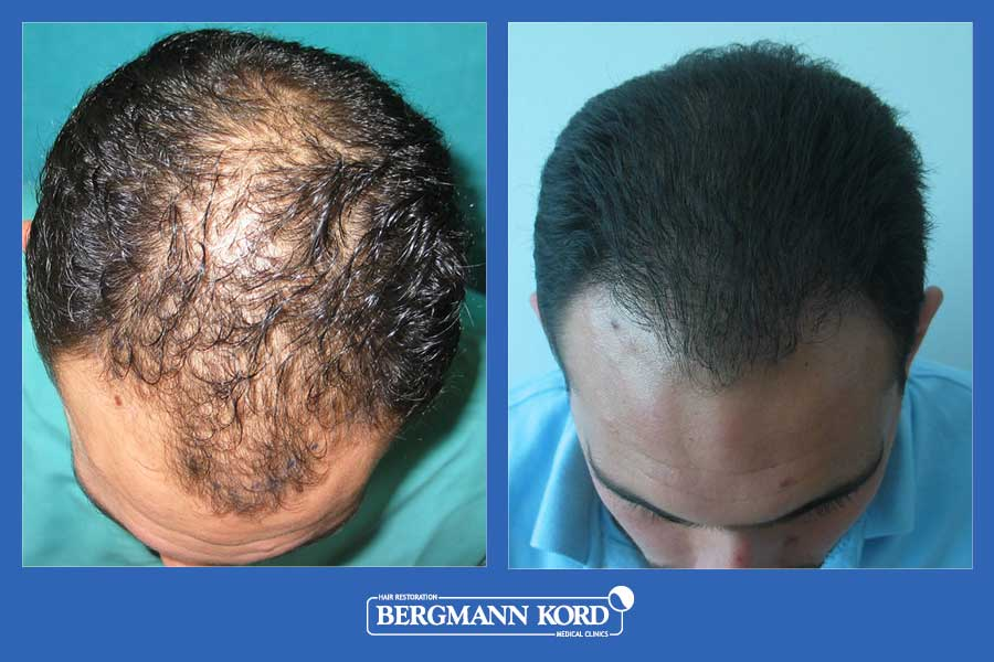 hair-transplantation-bergmann-kord-results-men-31667PG-before-after-002