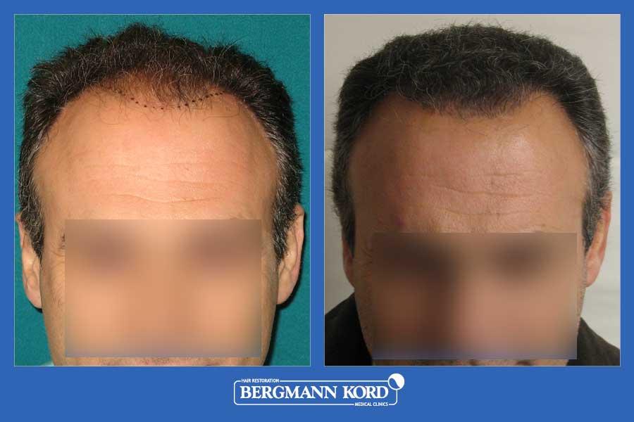 hair-transplantation-bergmann-kord-results-men-32284PG-before-after-001