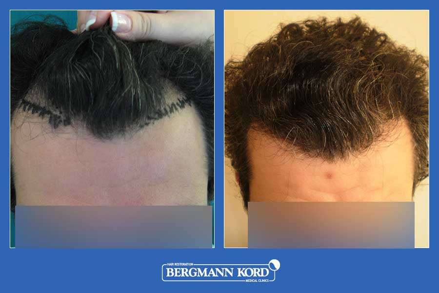 hair-transplantation-bergmann-kord-results-men-33033PG-before-after-001