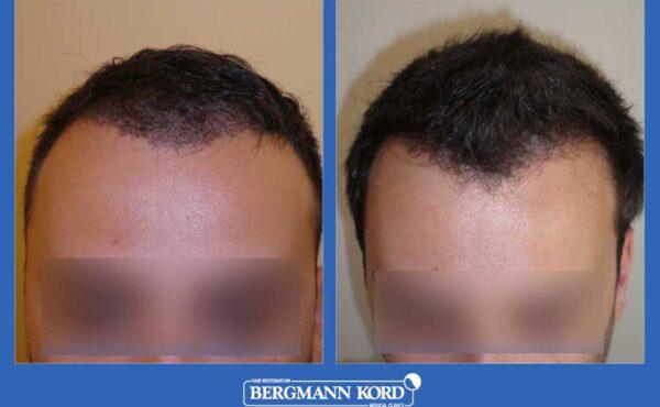hair-transplantation-bergmann-kord-results-men-33069PG-before-after-001