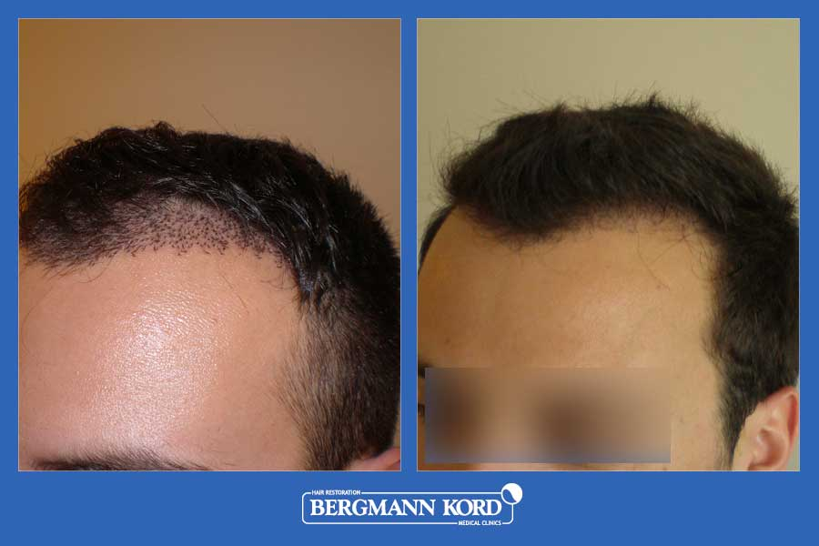 hair-transplantation-bergmann-kord-results-men-33069PG-before-after-002