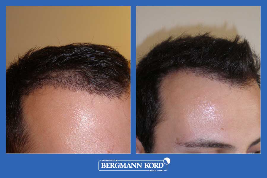 hair-transplantation-bergmann-kord-results-men-33069PG-before-after-003