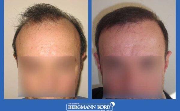 hair-transplantation-bergmann-kord-results-men-35068PG-before-after-001