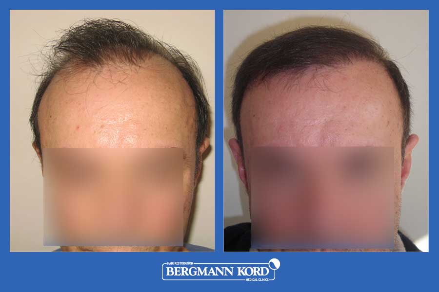 hair-transplantation-bergmann-kord-results-men-35068PG-before-after-001