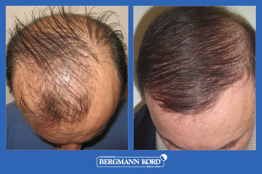 hair-transplantation-bergmann-kord-results-men-35068PG-before-after-002