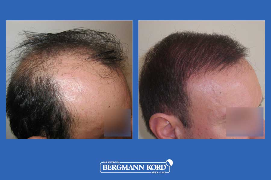 hair-transplantation-bergmann-kord-results-men-35068PG-before-after-004