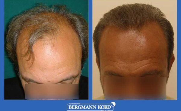 hair-transplantation-bergmann-kord-results-men-36001PG-before-after-001