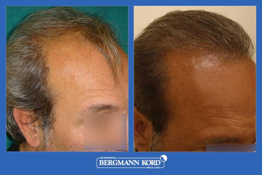 hair-transplantation-bergmann-kord-results-men-36001PG-before-after-002
