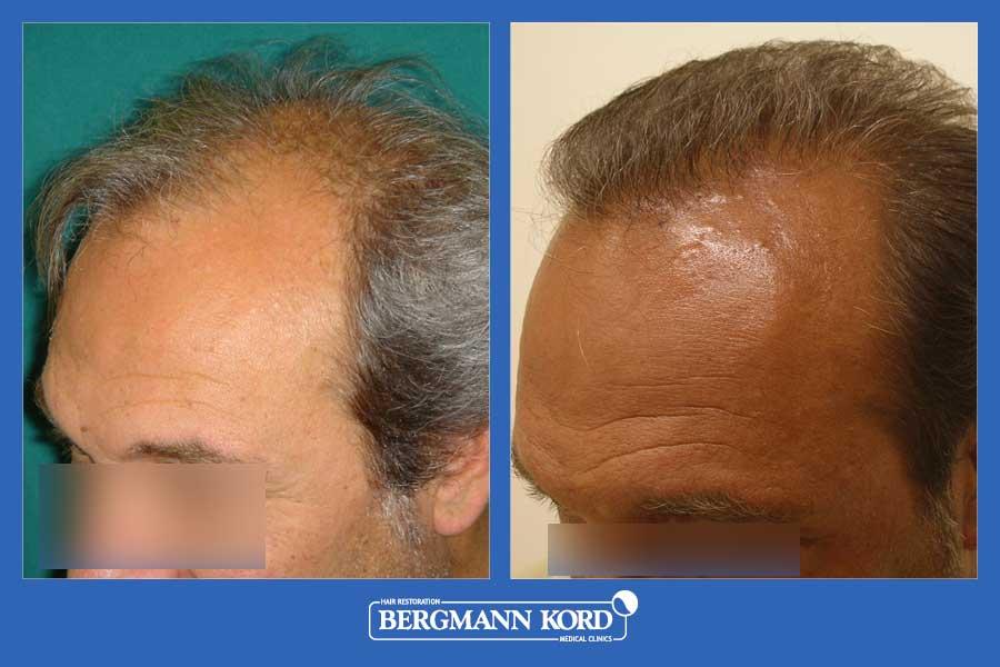 hair-transplantation-bergmann-kord-results-men-36001PG-before-after-003