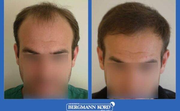 hair-transplantation-bergmann-kord-results-men-39049PG-before-after-001