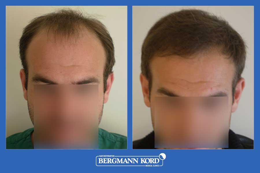 hair-transplantation-bergmann-kord-results-men-39049PG-before-after-001