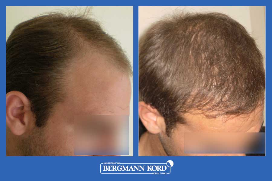 hair-transplantation-bergmann-kord-results-men-39049PG-before-after-004