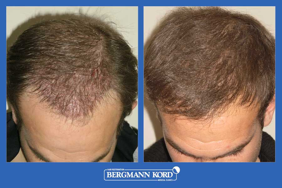 hair-transplantation-bergmann-kord-results-men-39049PG-before-after-005