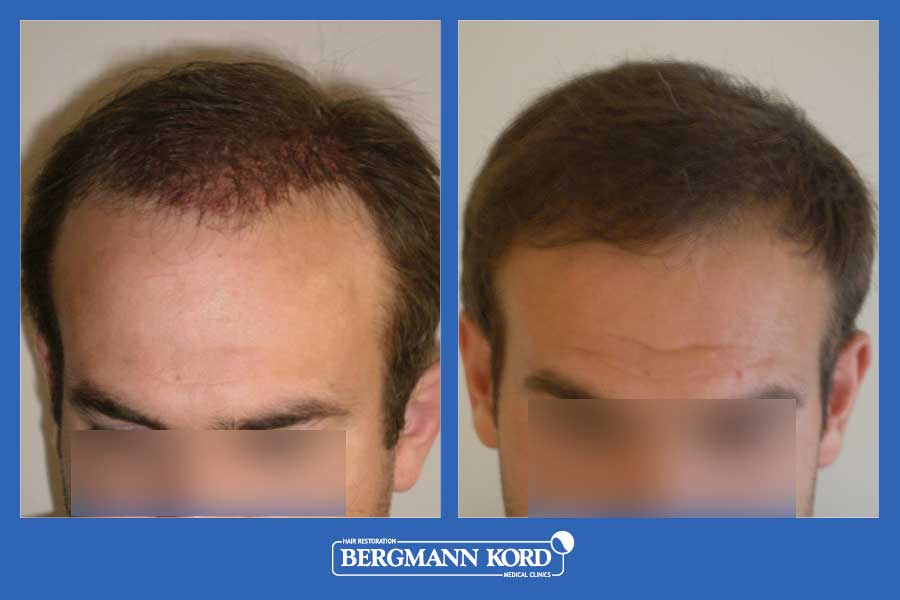 hair-transplantation-bergmann-kord-results-men-39049PG-before-after-006