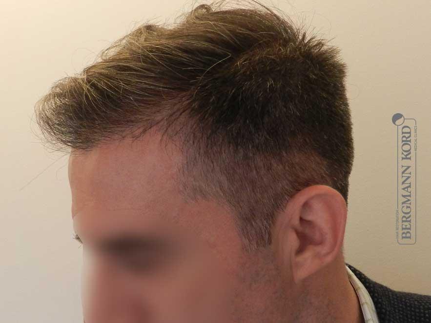 hair-transplantation-bergmann-kord-results-men-41001PG-after-left-001