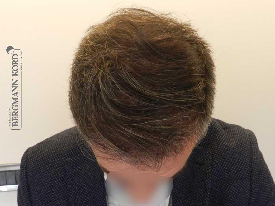 hair-transplantation-bergmann-kord-results-men-41001PG-after-top-001