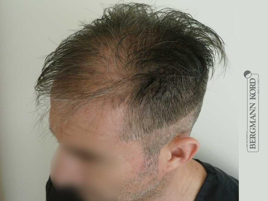 hair-transplantation-bergmann-kord-results-men-41001PG-before-left-001