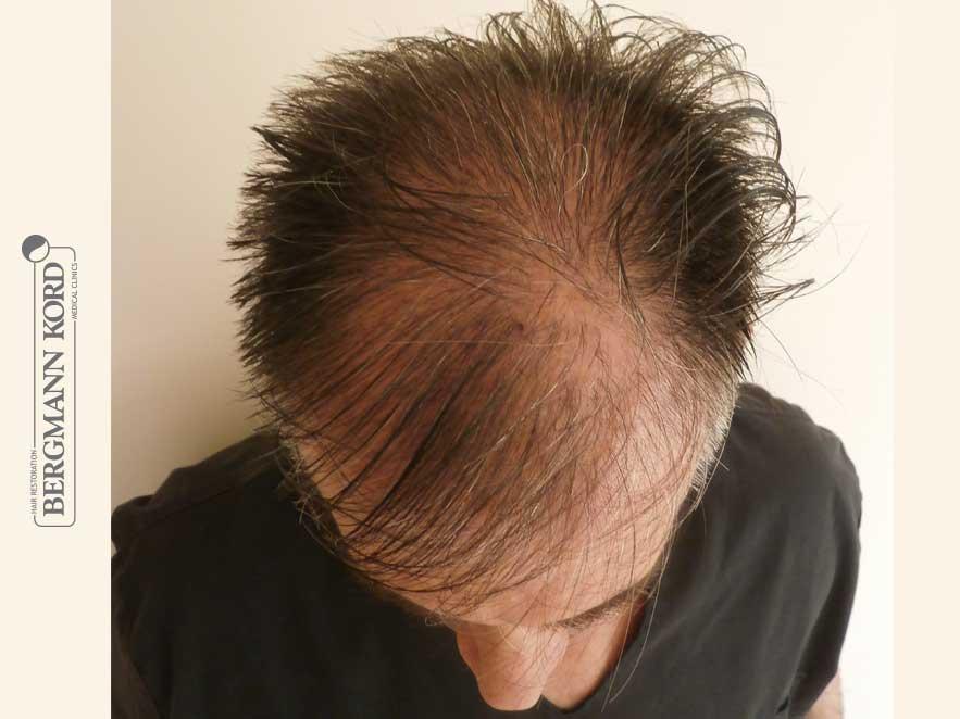 hair-transplantation-bergmann-kord-results-men-41001PG-before-top-001