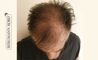 hair-transplantation-bergmann-kord-results-men-41001PG-thumb-001