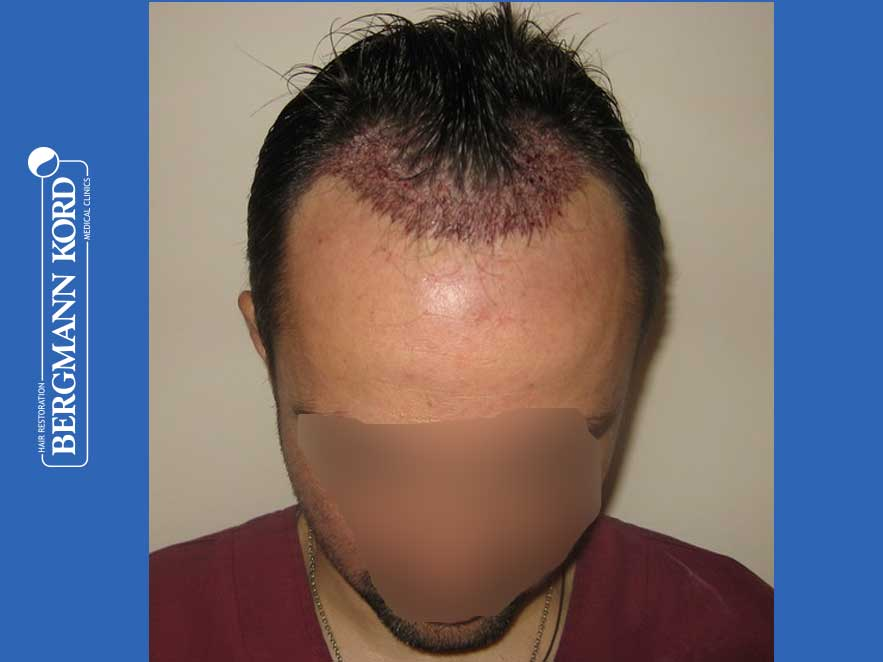 hair-transplantation-bergmann-kord-results-men-41035PG-after-surgery-front-001