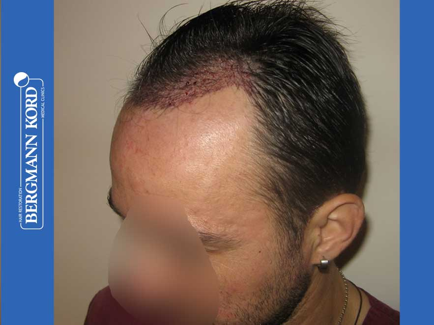 hair-transplantation-bergmann-kord-results-men-41035PG-after-surgery-left-001