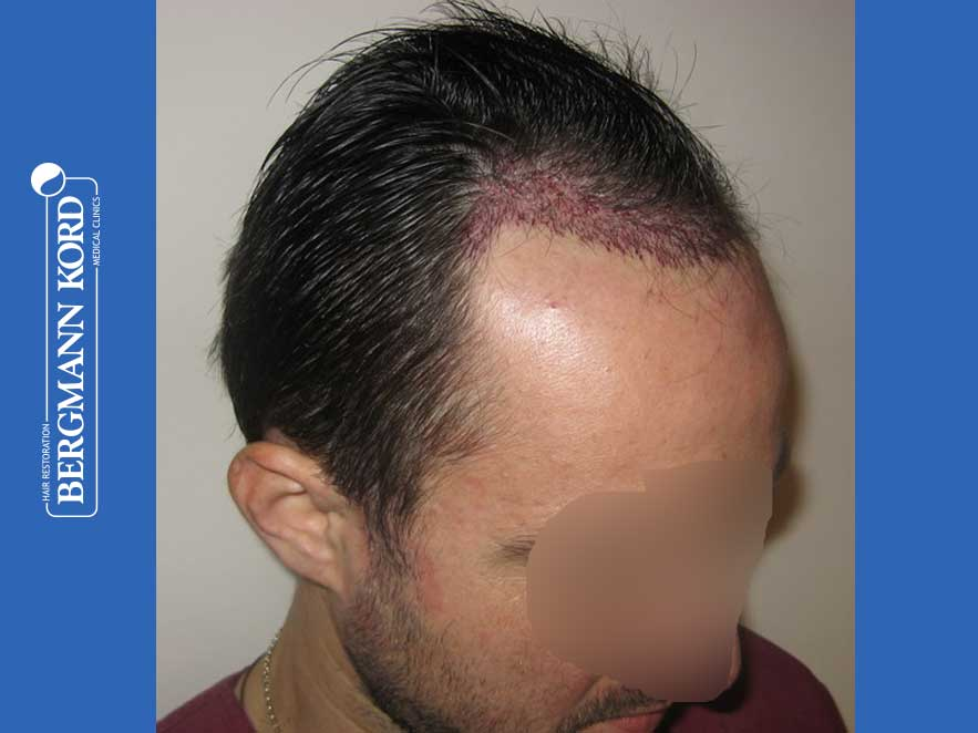 hair-transplantation-bergmann-kord-results-men-41035PG-after-surgery-right-001