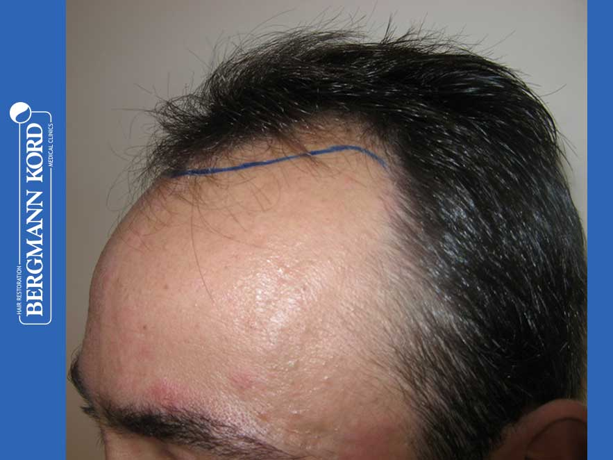 hair-transplantation-bergmann-kord-results-men-41035PG-before-left-001