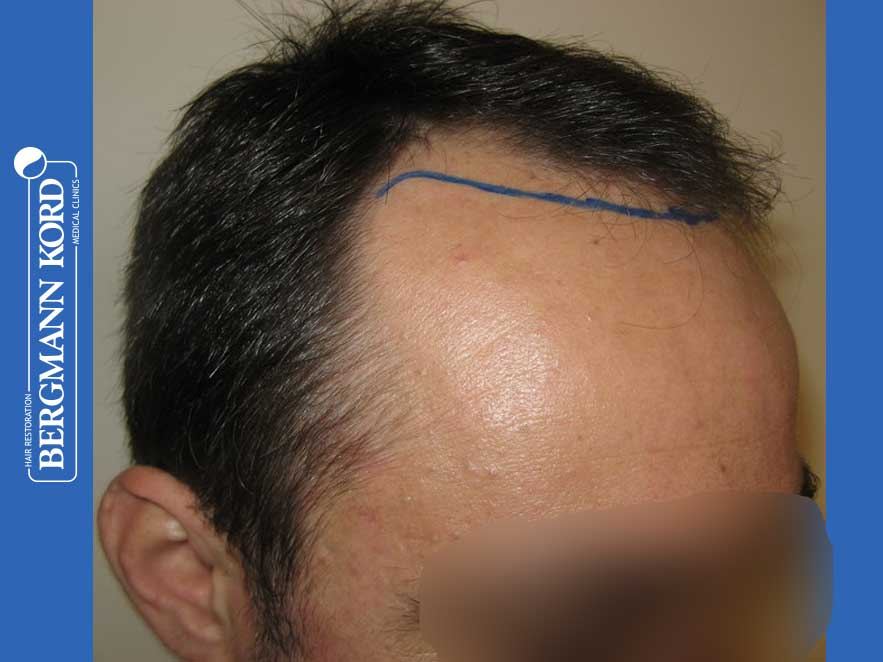 hair-transplantation-bergmann-kord-results-men-41035PG-before-right-001