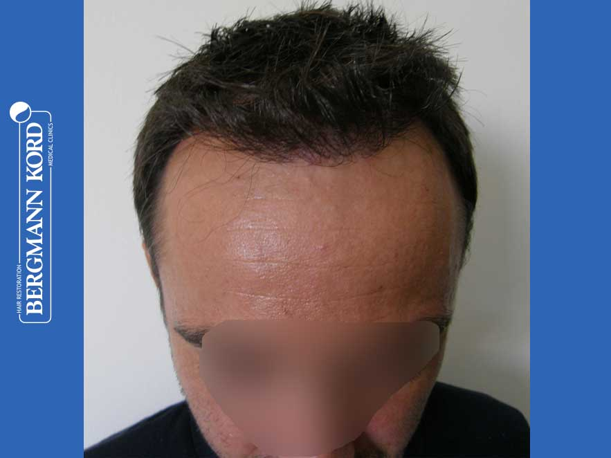 hair-transplantation-bergmann-kord-results-men-41035PG-present-front-001