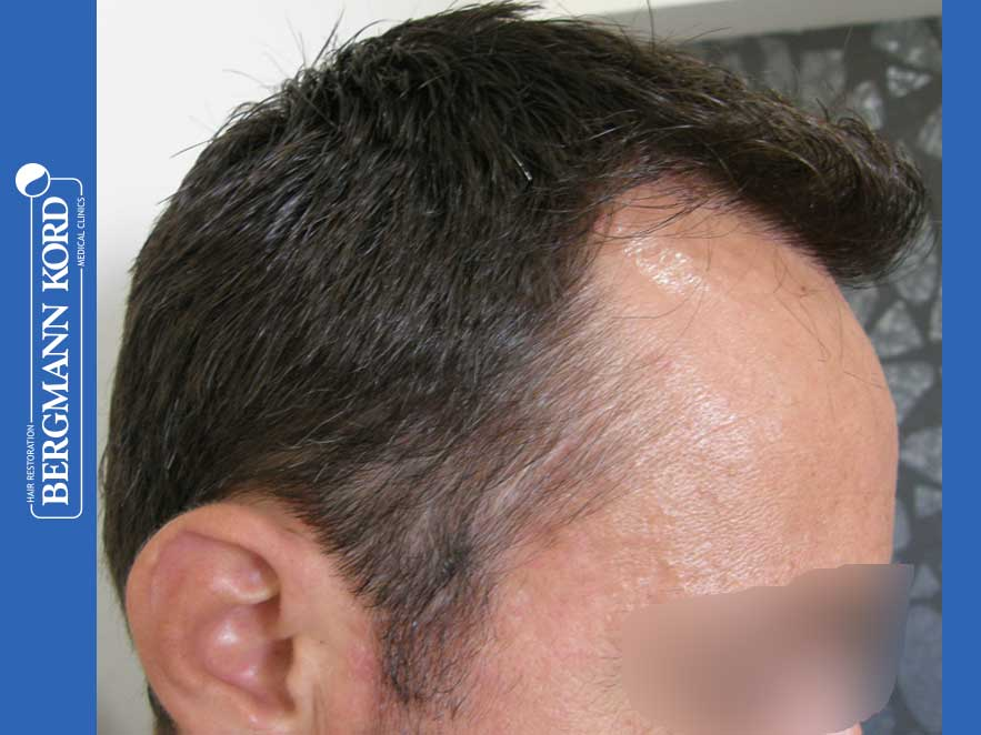 hair-transplantation-bergmann-kord-results-men-41035PG-present-right-001