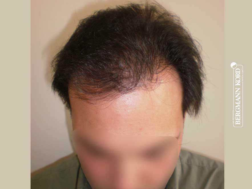 hair-transplantation-bergmann-kord-results-men-41042PG-after-top-001