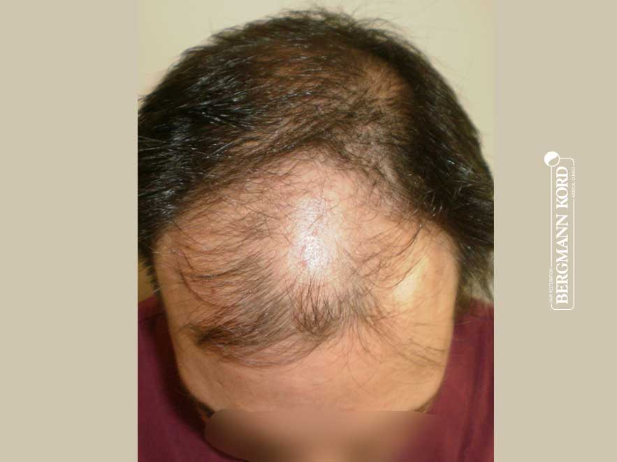 hair-transplantation-bergmann-kord-results-men-41042PG-before-top-001