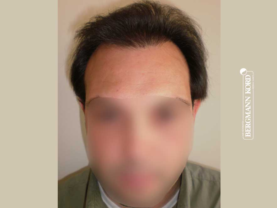 hair-transplantation-bergmann-kord-results-men-41042PG-present-front-001