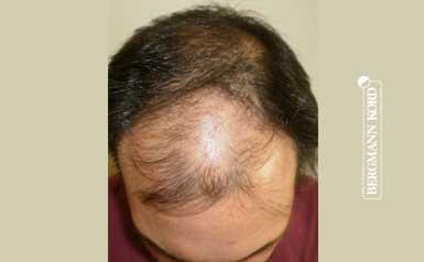 hair-transplantation-bergmann-kord-results-men-41042PG-thumb-001