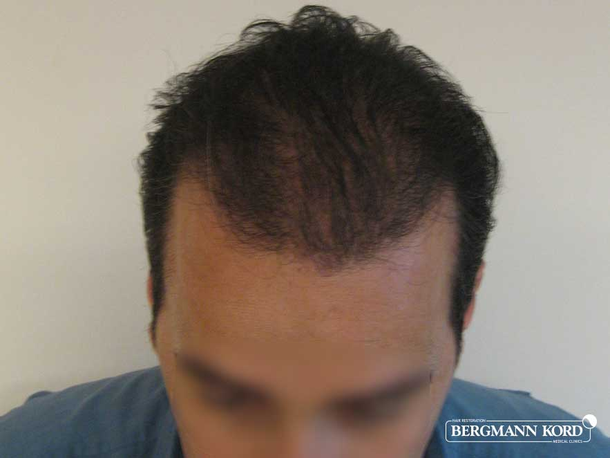 hair-transplantation-bergmann-kord-results-men-42010PG-after-top-001