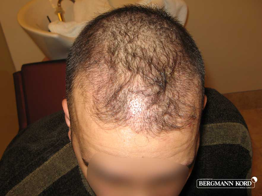 hair-transplantation-bergmann-kord-results-men-42010PG-before-top-001