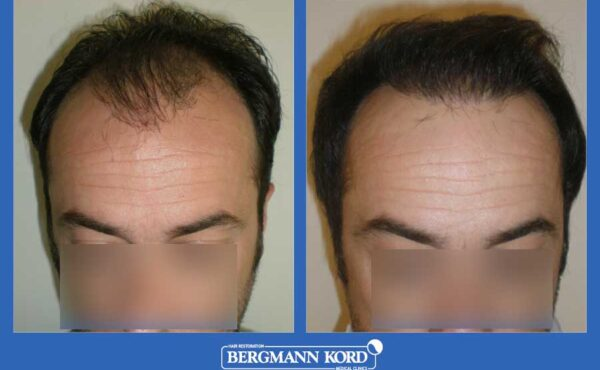 hair-transplantation-bergmann-kord-results-men-42087PG-before-after-001