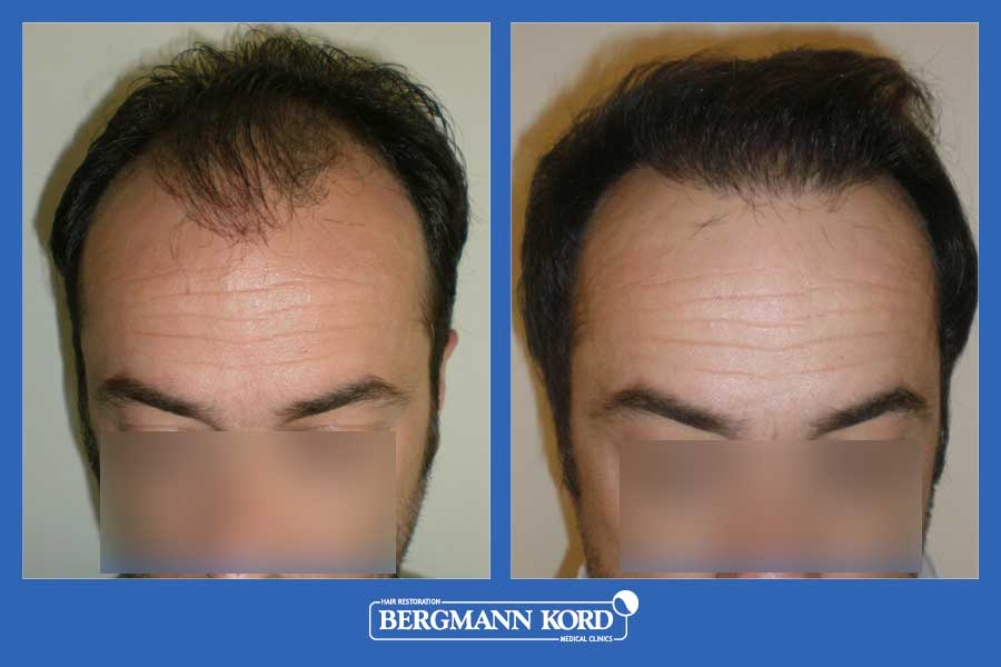 hair-transplantation-bergmann-kord-results-men-42087PG-before-after-001