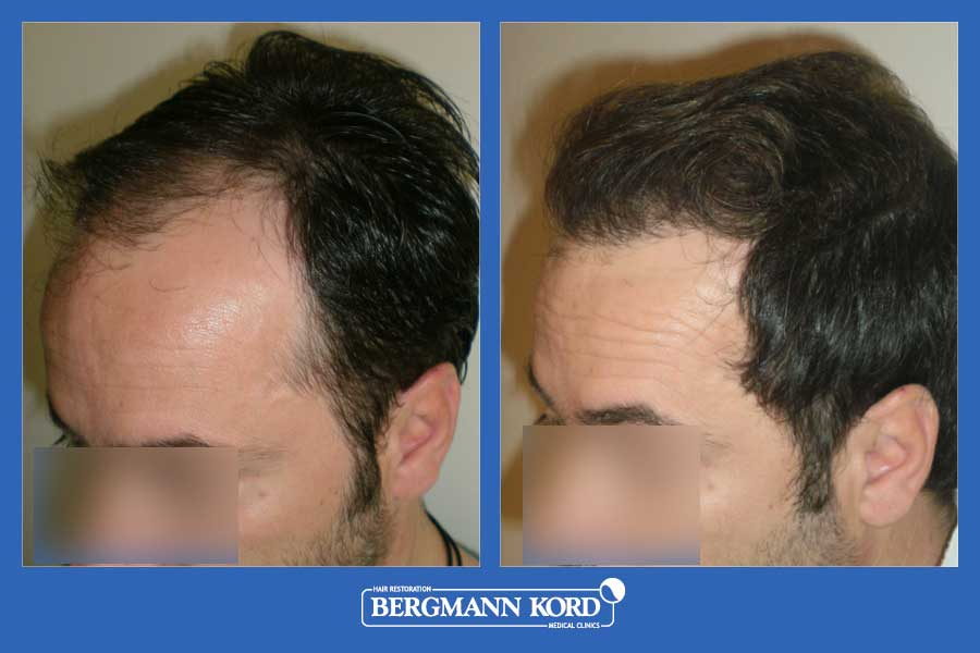 hair-transplantation-bergmann-kord-results-men-42087PG-before-after-002